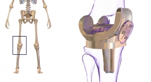 Solid Growth Predicted for Global Knee Replacement Market