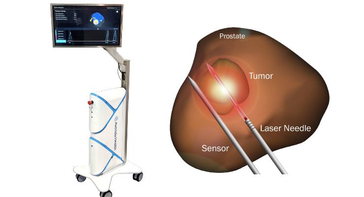 Avenda Health's Male 'Lumpectomy' Receives Breakthrough Device Designation