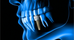 Researchers Develop AI to Predict Outcomes for Patients with Diseased Dental Implants