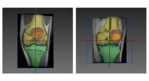 RSIP Vision Unveils New Articular Cartilage Segmentation Tool