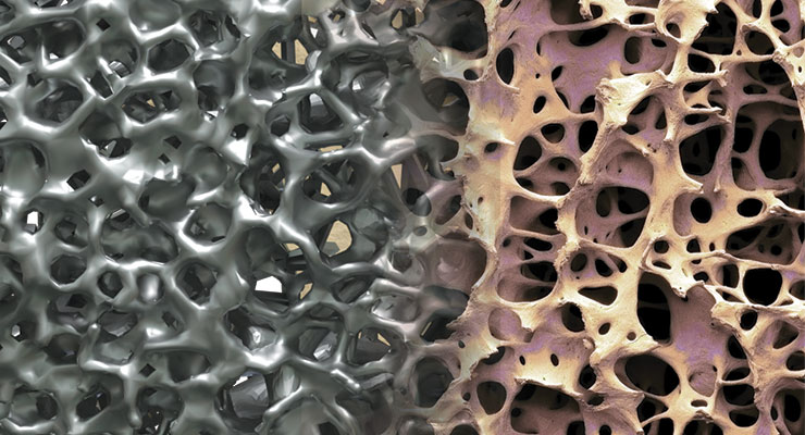 Metal Injection Molding and Metal 3D Printing Examination