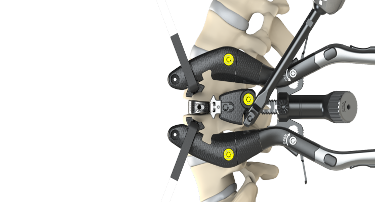 Comprehensive Tool Set Key to Lateral Access Spine Surgery Success