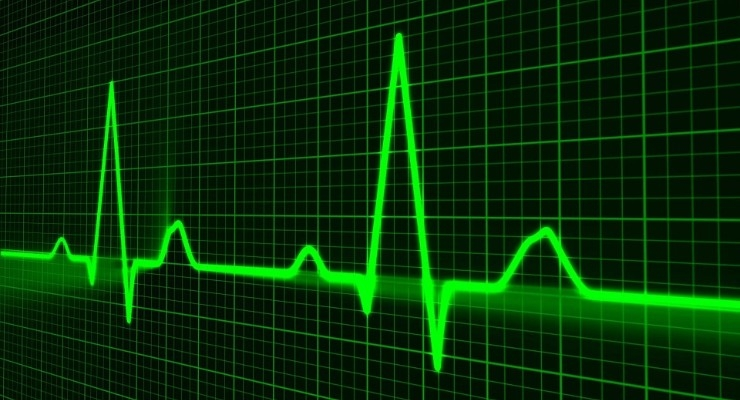 Study: Human Oversight ECG Monitors Outperform AI-Dependent Monitoring