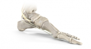 Stryker Releases Citrelock Tendon Fixation Device System