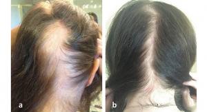Replenology Hair System Prevents Female Hair Loss