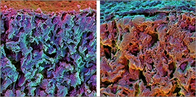 Regenerating Bone by Controlling Stem Cells