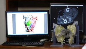 CT and 3-D Printing Aid Surgical Separation of Conjoined Twins