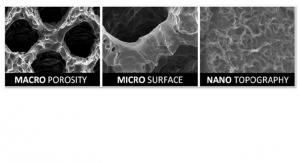 Less Inflammation, Better Osteointegration: Nexxt Spine's NanoMatrixx Bioactive Material