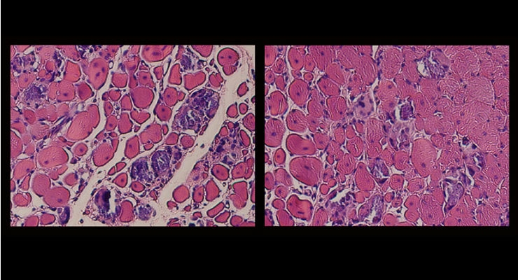 Newfound Strength in Regenerative Medicine for Muscles