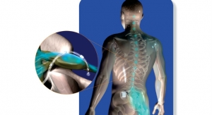 FDA Approval of St. Jude's Neurostimulator Device for Chronic Intractable Pain