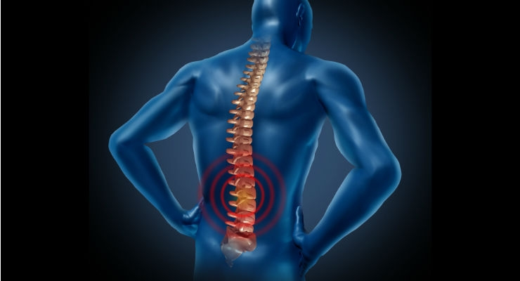 Might Stem Cells Offer Treatment for Degenerative Disc Disease?
