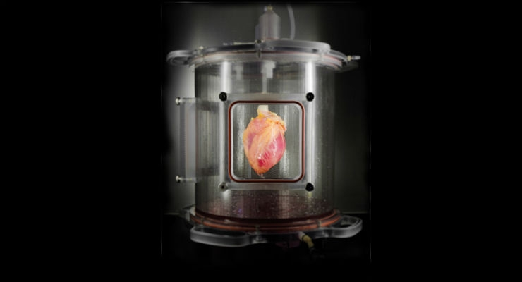Functional Heart Muscle Regenerated in Decellularized Human Hearts