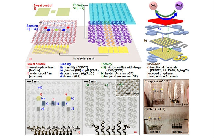 Wearable Graphene-Based Biomedical Device to Monitor and Combat Diabetes