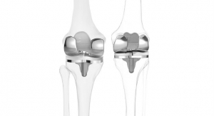 Custom Knee Implants Offer More Natural Movement