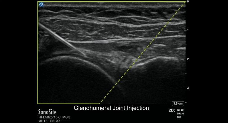 Ultrasound Technology Designed for MSK Developing a Positive Image
