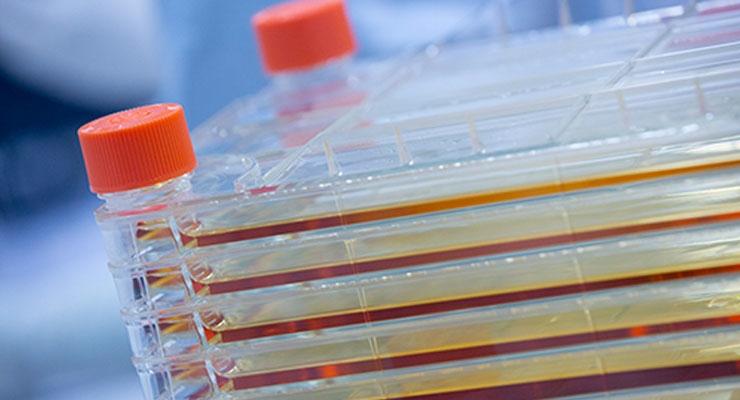 Bone Therapeutics Completes Recruitment in Spinal Fusion Study