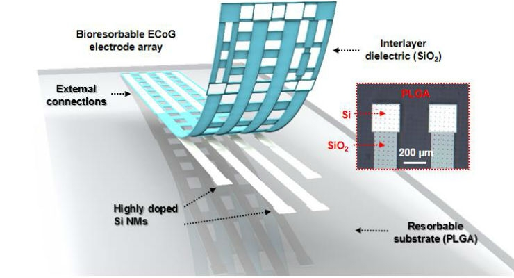 Flexible, Dissolvable Silicon Electronic Device Holds Promise for Brain Monitoring