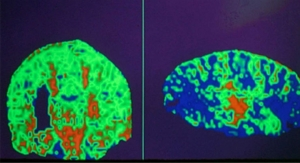 Portable Diagnostic Tool Pairs Optical and Gamma Imaging