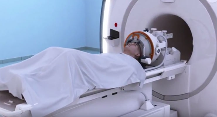 FDA Approves First MRI-Guided Focused Ultrasound Device to Treat Essential Tremor