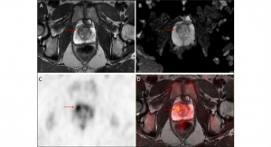 PET/MRI: A One-Stop Imaging Test to Detect Prostate Cancer?