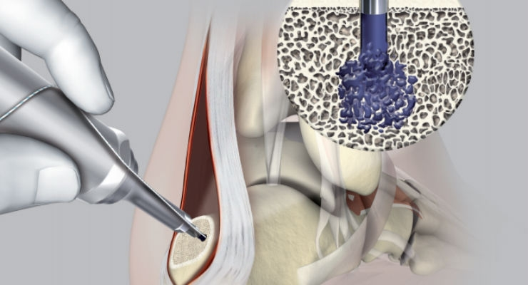 Stryker Unveils Ultrasonic Bioresorbable Implant for Suture and Tissue Fixation