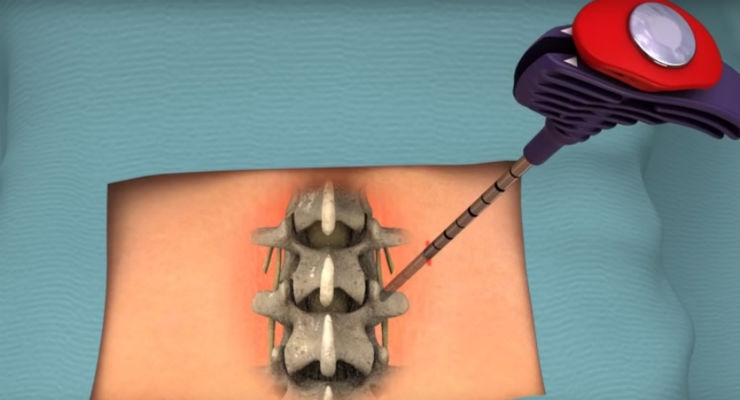 FDA Clears Intraosseous Nerve Ablation System for Chronic Low Back Pain