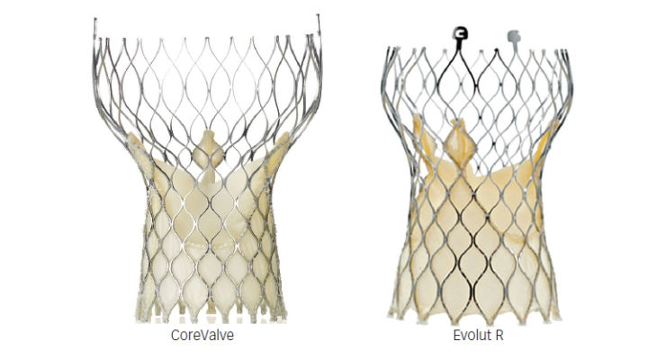 Transcatheter Aortic-Valve Implantation for Aortic ...