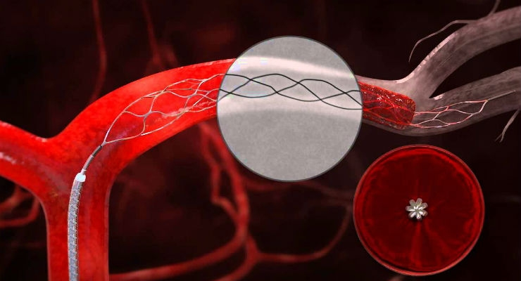 FDA Clears Two Clot Retrieval Devices to Reduce Disability in Stroke Patients