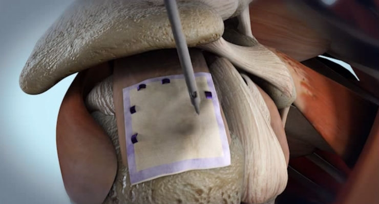 Bioinductive Implant Induces New Tissue in Partial-Thickness Rotator Cuff Tear Patients