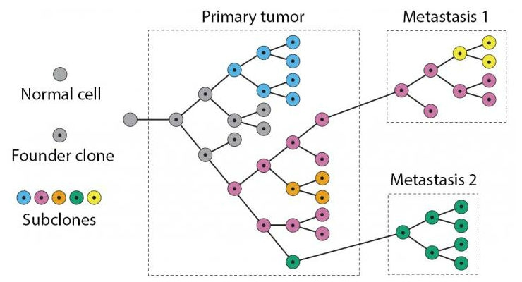 Software Helps Identify Course of Cancer Metastasis, Tumor