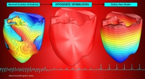 Using Light to Restore a Healthy Heartbeat