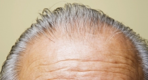 Summary Judgement Against Grey Hair Supplement Maker