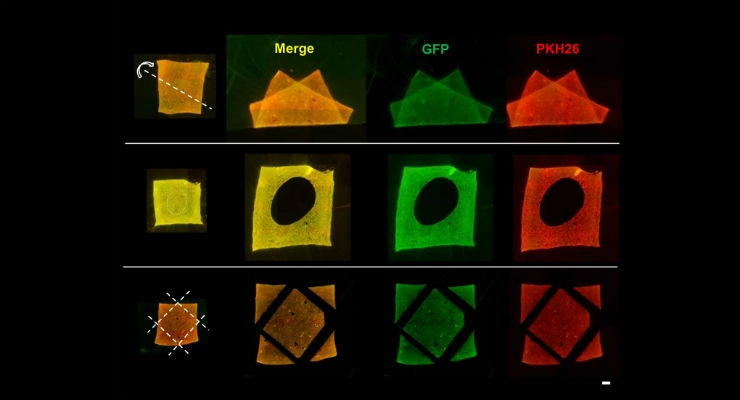 Fluorescence microscopic images of amnion holding double-layered cells after deformation (top), holing (middle) and trimming (bottom) of the membrane. Despite of deformations and trimming of cell transferred amnion, cells were stably adhered onto the scaffold material. Green (GFP): First layer cells, Red (PKH26): Second layer cells. Bar = 1 mm (All images credit: Department of Nanomedicine (DNP), TMDU)