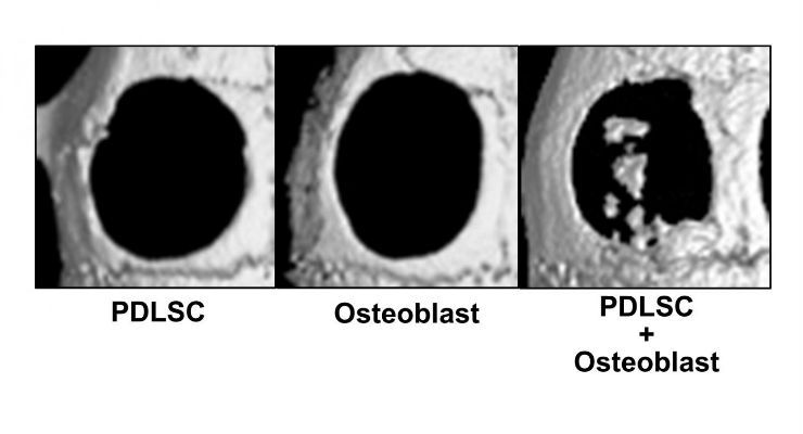 Micro CT images of bone defects 4 weeks after the transplantation of cell-transferred amnion. In the single cell transplantation (mesenchymal stem cells from periodontal ligament (PDLSC) or osteoblast), bone healing was limited, while new bone-like tissue formation was observed in bone defects transplanted with double-layered cell-transferred amnion (PDLSC+Osteoblast).