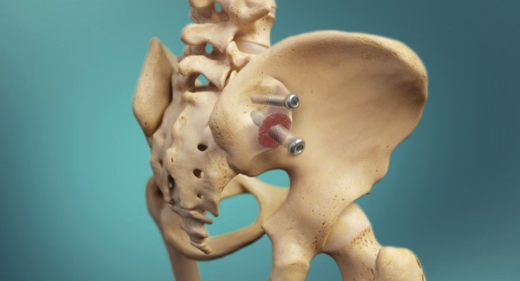 Zyga Releases 12-month Fusion and Clinical Results of Sacroiliac Joint Fusion With Decortication