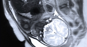 MRI Algorithm Could Help Analyze Fetal Scans to Warrant Interventions