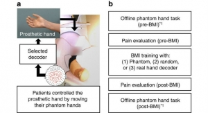 Cause of Phantom Limb Pain and Potential Treatment for Amputees Identified