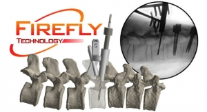 Second FDA Clearance for Patient-Specific 3D-Printed Firefly Pedicle Screw Navigation Guides