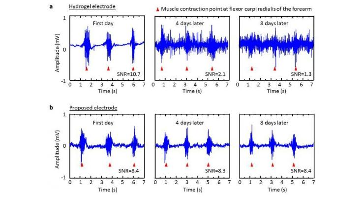 Health Diagnosis Through Bio-Signal Measuring Electrodes on IoT Devices