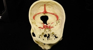 Mount Sinai Establishes 3D Printing Services for Clinicians and Researchers