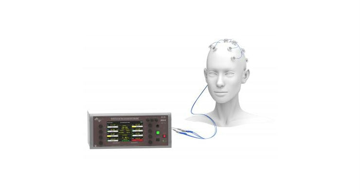 EEG-Guided High-Definition tES (HD-tES) system. (Credit: Soterix Medical Inc.)