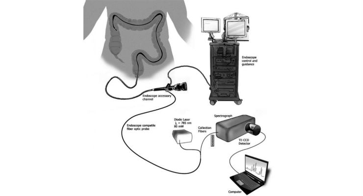 The sensor detects molecular markers of IBD using a minimally-invasive endoscope that can be easily integrated into a routine colonoscopy exam. (Credit: Vanderbilt University)