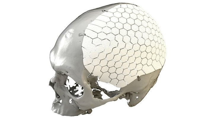 FDA Clears OssDsign Patient-Specific 3D-Printed Cranial Implant