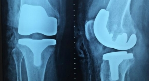 Study Finds No Way to Predict Risk of Joint Replacements