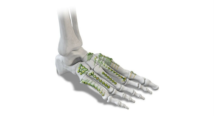 Paragon 28 Launches Small Bone Fixation System for Foot & Ankle