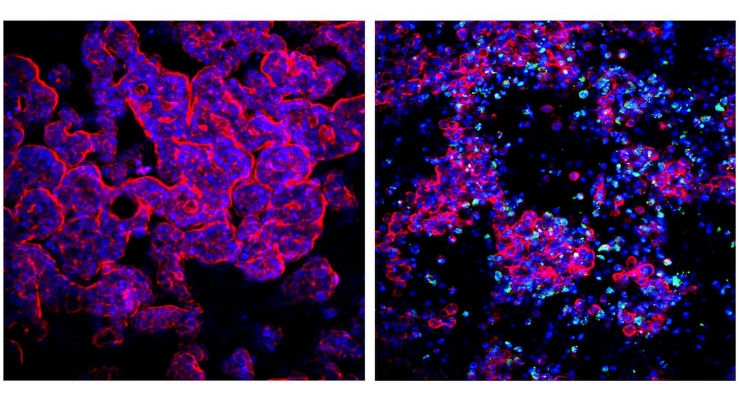 As shown in these immunofluorescence images, the research team recapitulated the typical epithelial microvilli architecture of the human gut in a microchannel of a microfluidic chip with cell nuclei shown in blue and the cytoskeleton that enables each cell to assume and maintain its shape in the microvilli structure shown in red (left image). Upon infection with a clinical Coxsackievirus B1 strain (green), the epithelium produced and secreted additional viral particles that induced the break-down of the tissue's normal architecture. (Credit: Wyss Institute at Harvard University)