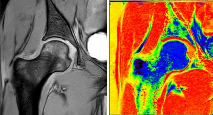 Raw image data collected from dGEMRIC MRI protocol at an inversion time of 1600 milliseconds (left). The T1 map computed from seven different inversion times using the automated, real-time, quantitative magnetic resonance imaging pipeline (right). (Credit: TACC, UTHRC, Philips Healthcare)