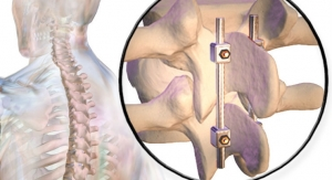 Multidisciplinary Collaboration Prevents Overuse of Spinal Fusion Surgery