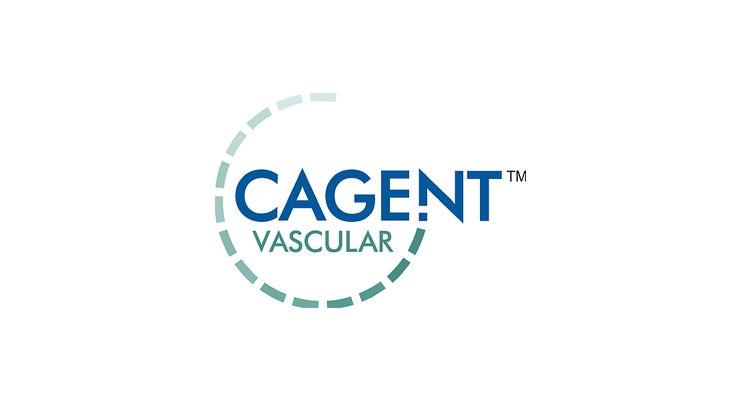 FDA Clears Cagent Vascular