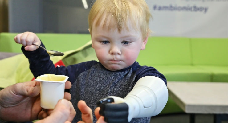 Two-year-old Sol with his fully-functioning Stratasys 3D printed hydraulic prosthetic arm, which enables him to move his thumb on his own (Credit: Business Wire).